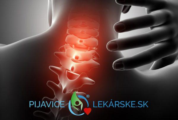 Krčná chrbtica býva hlavne pri sedavom zamestnaní často krát stuhnutá